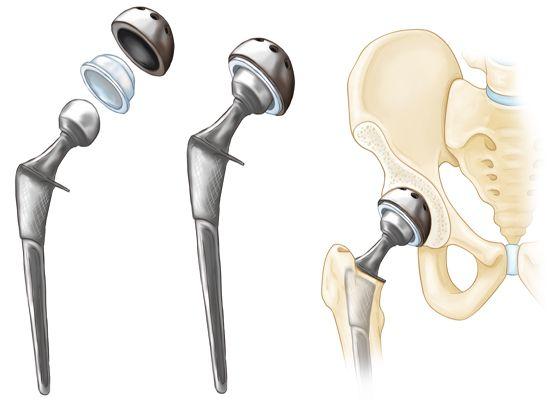 Encore Hip Implants & Serious Injuries